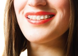 Get a perfect smile with invisible braces