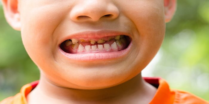 ap smilecare blog childrens dental facts decay