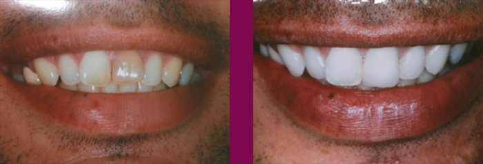 The risks of not having your teeth whitened by a professional-results