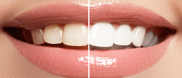 Get-spruced-up-for-the-party-season-whitening