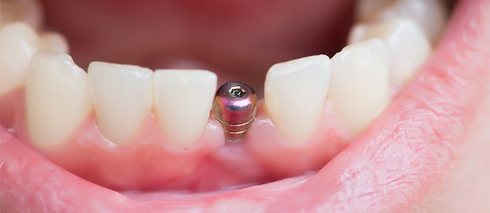 What are dental implants example
