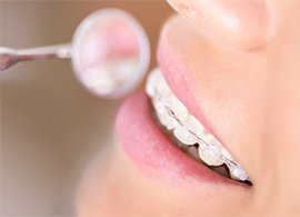 Braces What are your options-