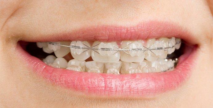 i want beautiful teeth