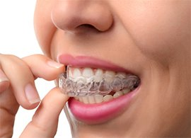 Quick Straight Teeth explained