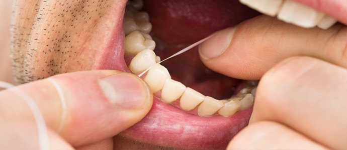 Receding gums Causes and solutions
