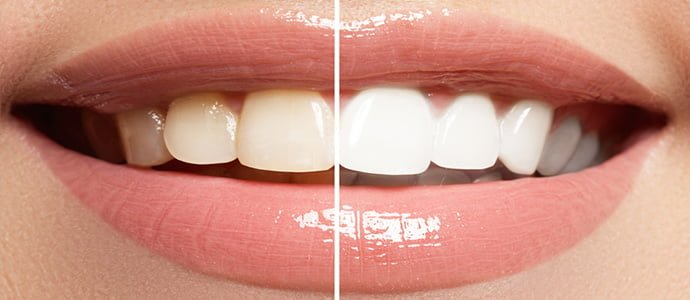 The clampdown on illegal teeth whitening treatments