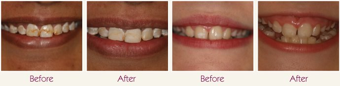 mottled-teeth-treatment