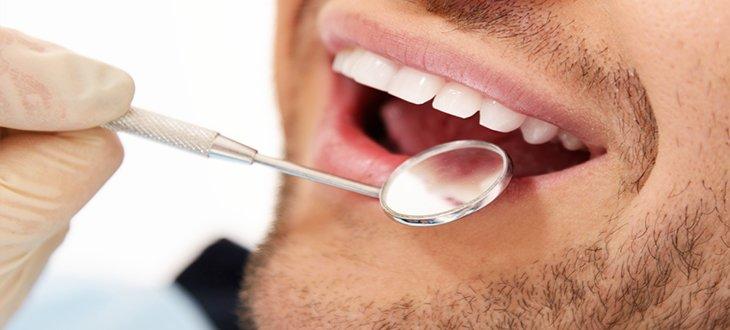 dentist checkup of man's teeth