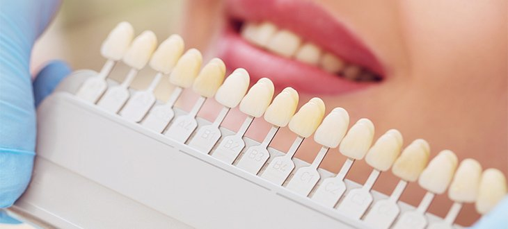 Teeth whitening at AP Smilecare
