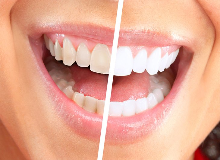 the dangers of tooth whitening kits