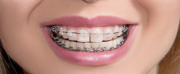Ceramic adult braces