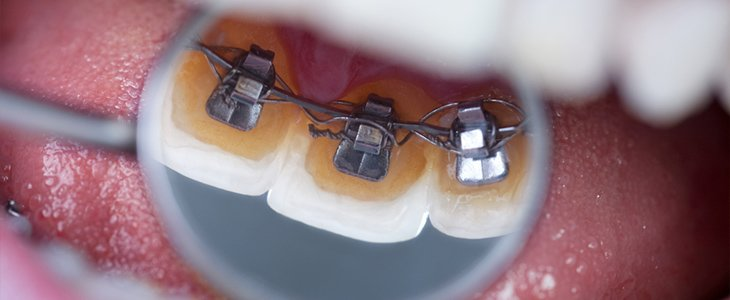 Incognito lingual adult braces