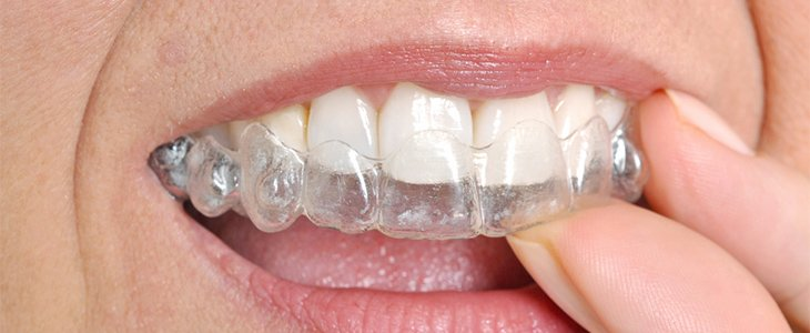 Invisible and Invisalign clear adult braces