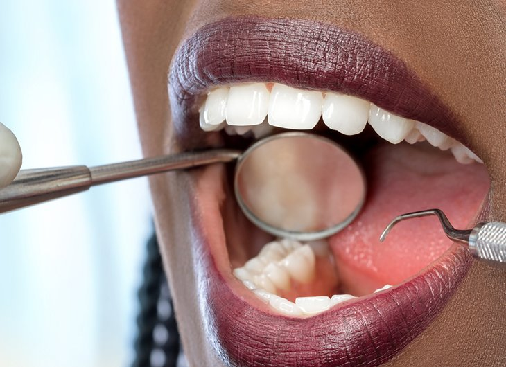 why a dental check up could save your life