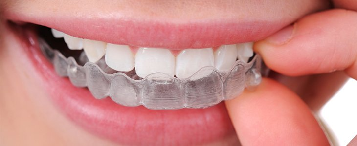 fitting Invisalign braces