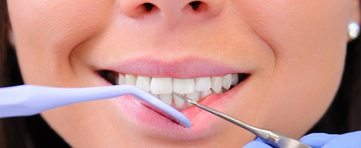 New Years resolutions to improve your oral health