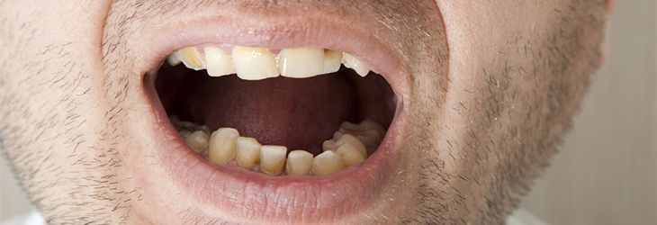 Stained teeth from coffee