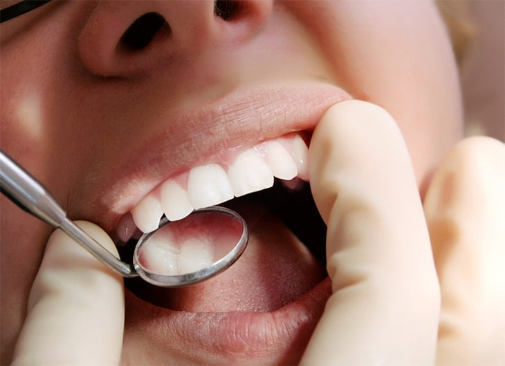 cavities and oral cancer why regular dental visits are important feature image