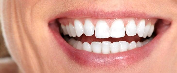 big white smile