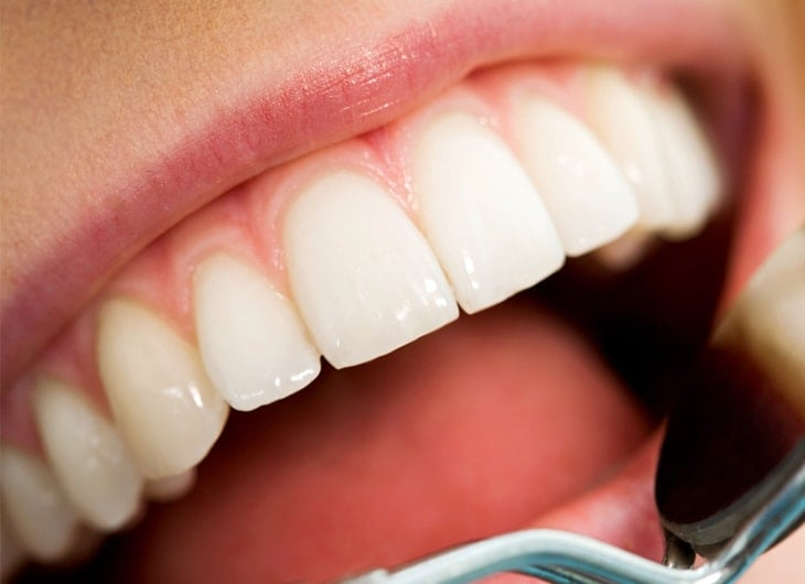 why having good teeth is great for your general health feature image