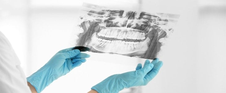 dental x ray results