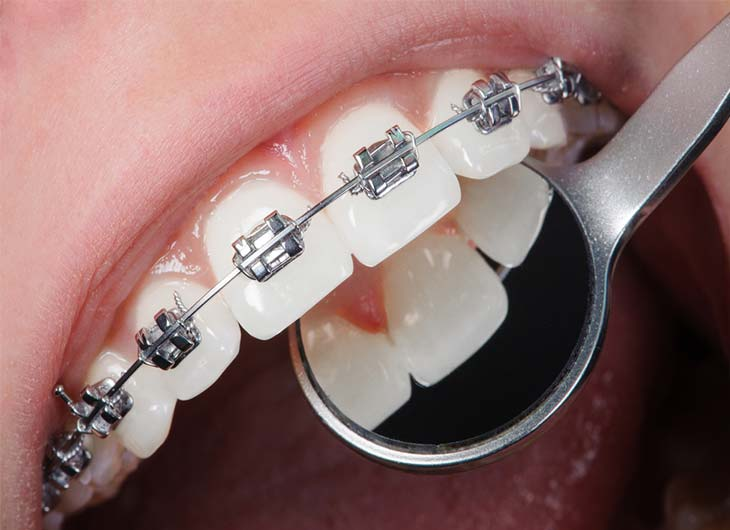 the cost of adult braces incognito braces and ceramic braces feature image