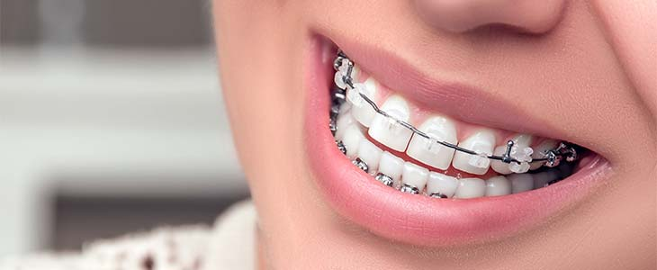 Cost Of Adult Braces 61