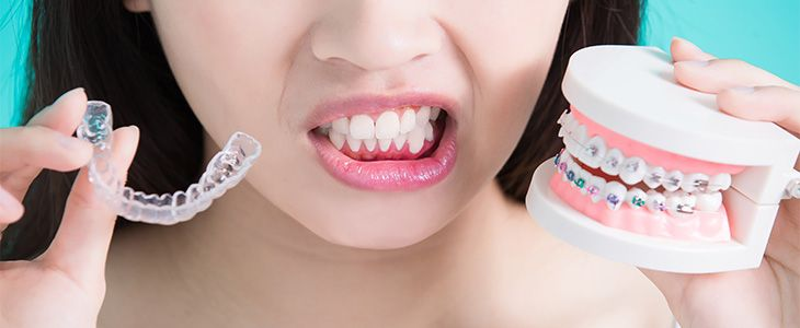 options on braces