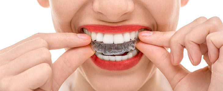 what are my options for crooked teeth adult invisalign braces