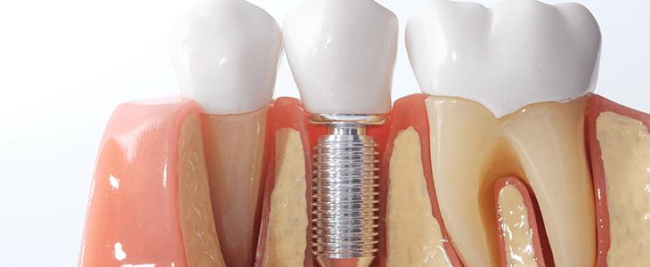 implant example