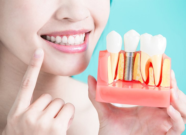 how safe are dental implants feature image