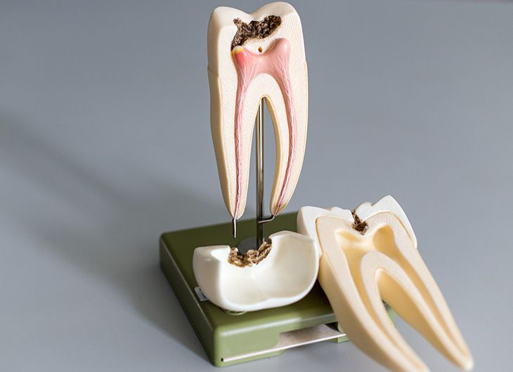 the facts about root canal treatments feature image