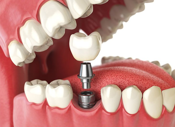 whats involved in a dental implant treatment feature image