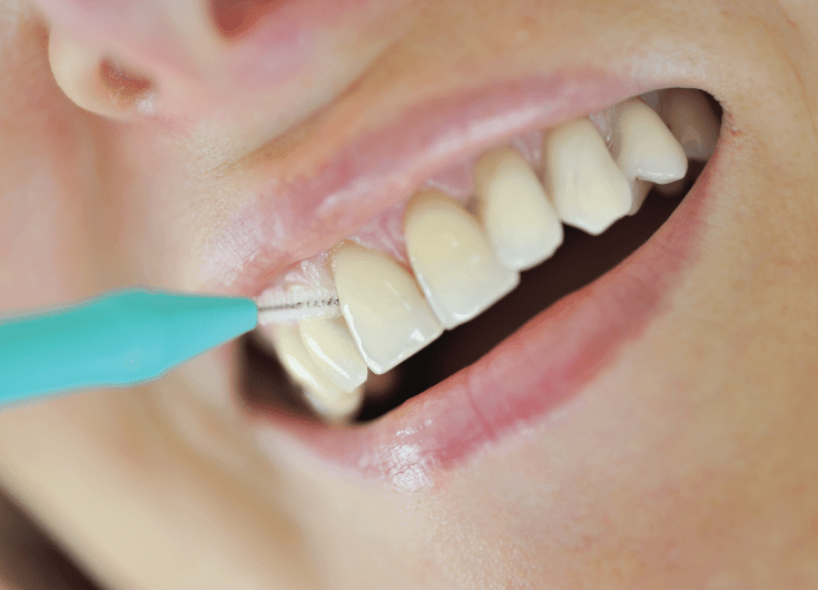 using interdental brush