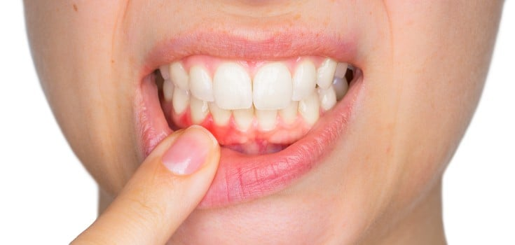 Top Reasons for Gum Pain